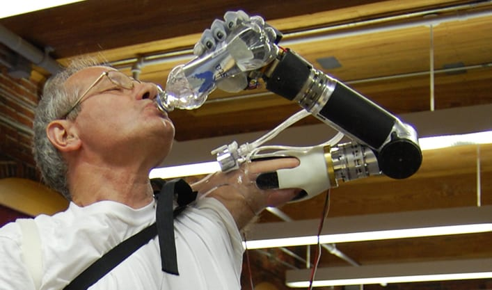 Popularity Of The Robotic Limbs For The Disabled